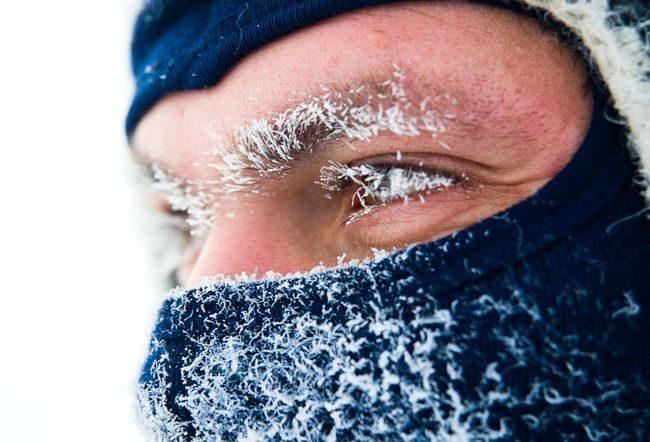 обмороження, мороз