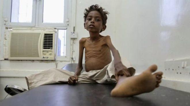 ООН заявила про наймасштабнішу гуманітарну кризу з 1945 року