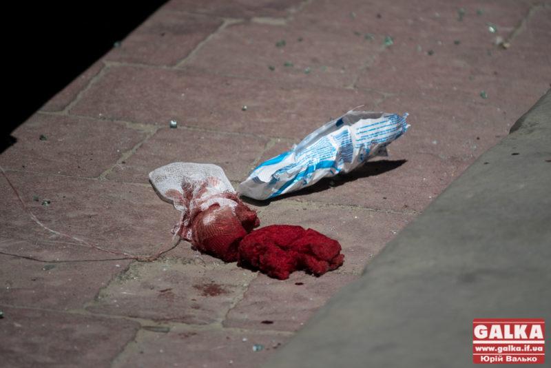 Поліція знайшла авто стрільця з-під Ратуші: нападник ще в розшуку (ФОТО)